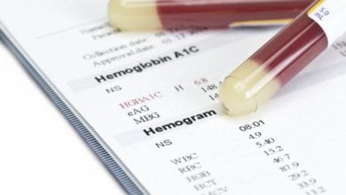 Photo of AIDS – Hemogram Testi Şüpheli Mi?